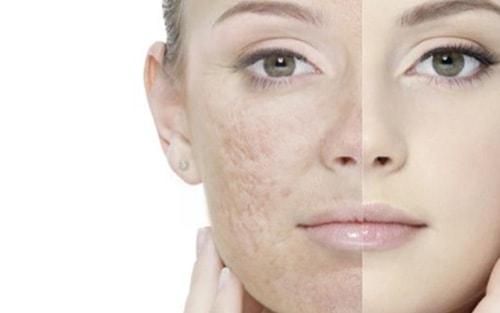 peeling chimique cicatrices acne